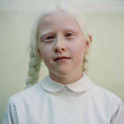 AlbinoBeauty4.jpg