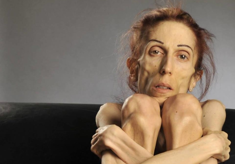 40-pound-anorexic-woman-rachael-farrokh-photo-750x522-1446142270.jpg