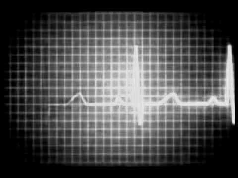 heart_monitor.jpg
