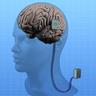 Implant Radio