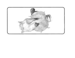 Standard-Grade Suprathyroid Gland