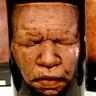 Preserved Severed Head in a Jar