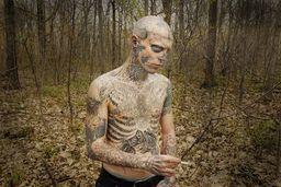 Needler Zombie